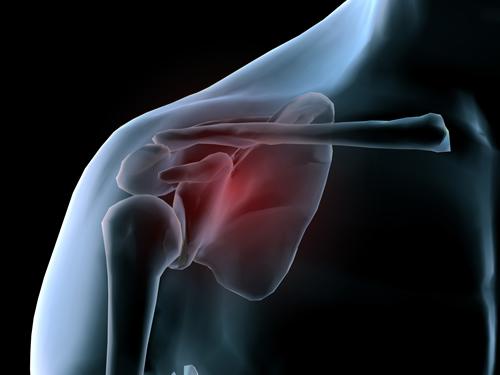 pinched_nerve_shoulder_surgery